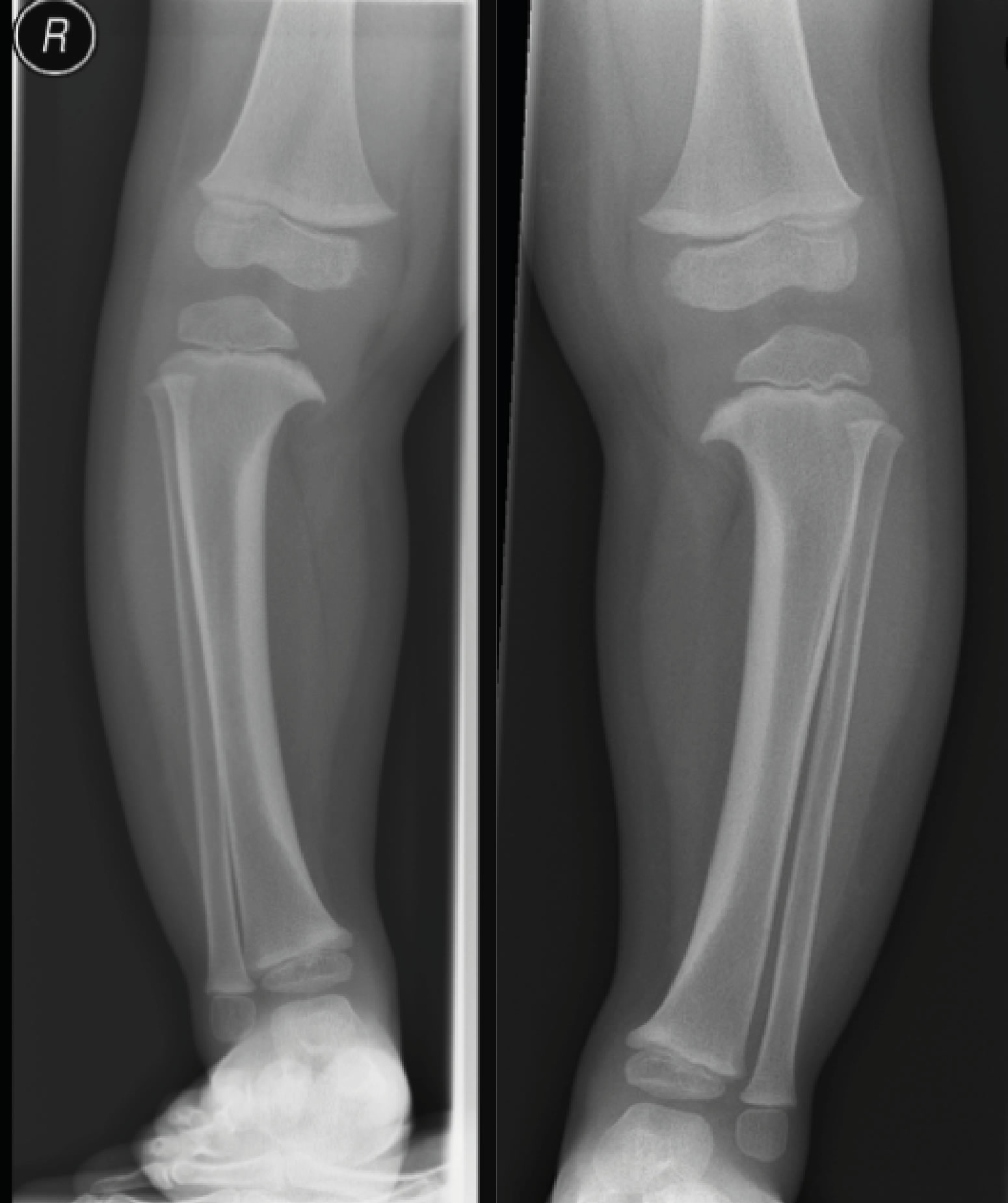 x-ray of legs at 2yrs old showing Blount's disease