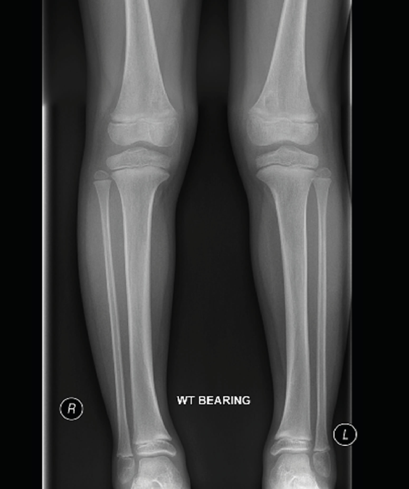X-ray at 5 yrs showing results