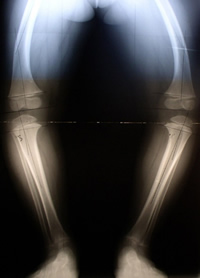 x-ray before treatment