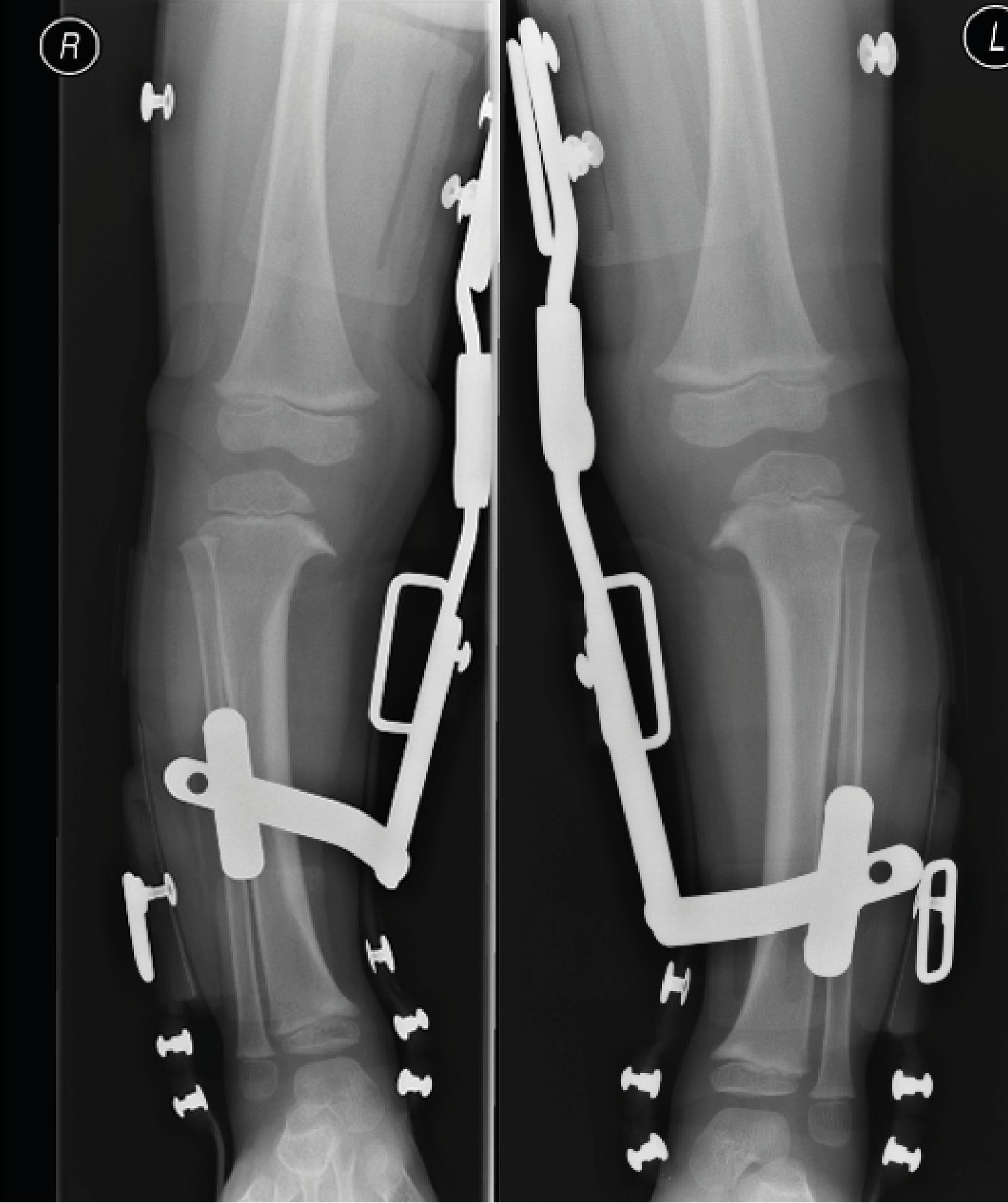 x-ray of legs in brace